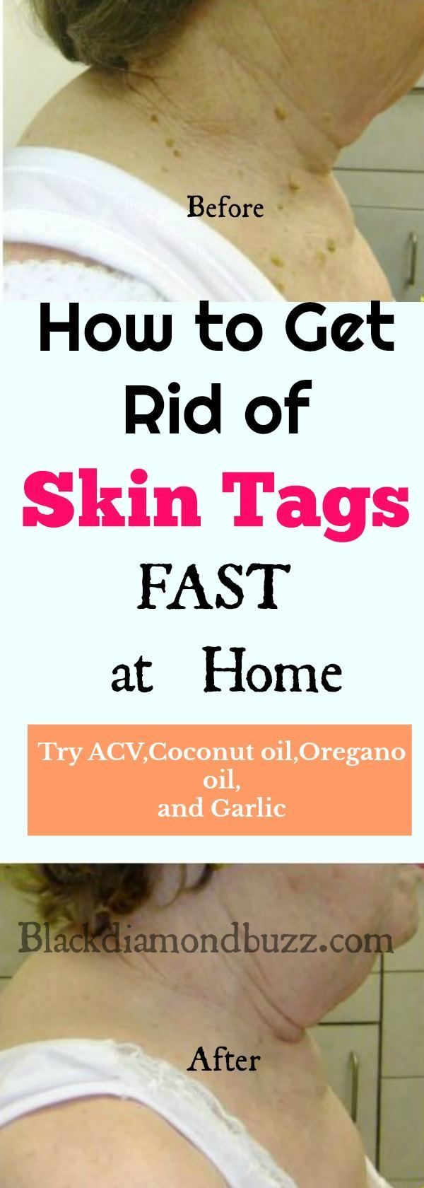 How to Remove Skin Tags Fast : Home Remedies and Causes of Skin Tags   How to Remove Skin Tags Fast: Home Remedies and Causes of Skin Tags: Ever wondered how to remove skin tags? Skin tags are small growths of skin that appear in various parts of your body, due to friction, excessive body weight, or even due to genetic issues, it can also cause by insulin resistance or type 2 diabetes. Active ingredients - apple cider vinegar, garlic, tea tree oil, oregano oil and coconut oil