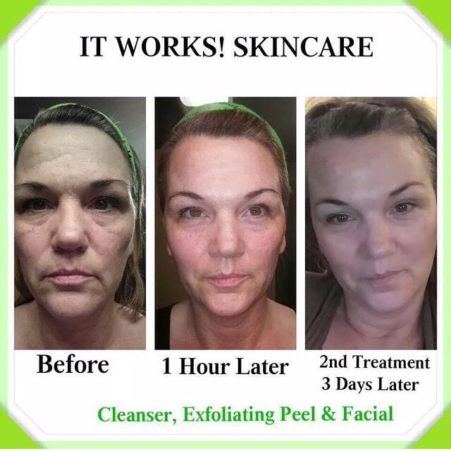 Before and after picture shows results from It Works! Cleanser, Exfoliating peel, and Facial wraps! Amazing! Click on the pic to check out my site!