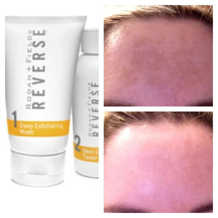 My Rodan and Fields Before and After Pics- It has been 2 weeks of using Rodan and Fields Reverse Regimen. My melasma has lightened up quite a bit. There are 4 different regimens that help with aging, acne, sensitivity, and sun damage. www.corin.myrandf.com