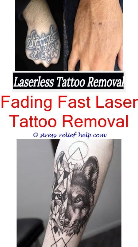Most Effective Tattoo Removal How To Remove Eyebrow Tattoo Without