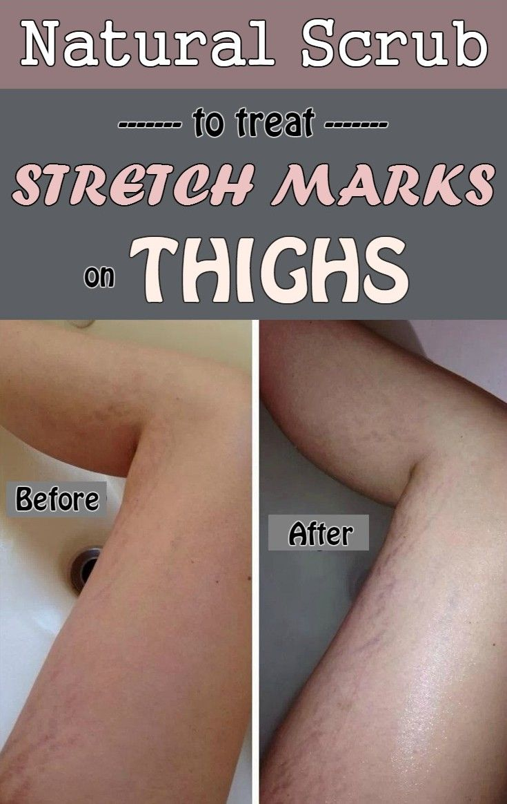 Natural scrub to treat stretch marks on thighs - BestWomenTips.com