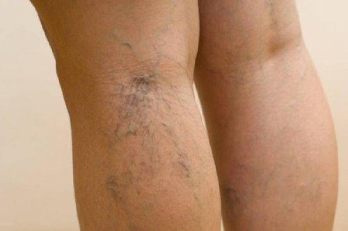 Remedios caseros para eliminar las varices. Tratamientos naturales para las piernas, varices internas y externas. Hierbas medicinales