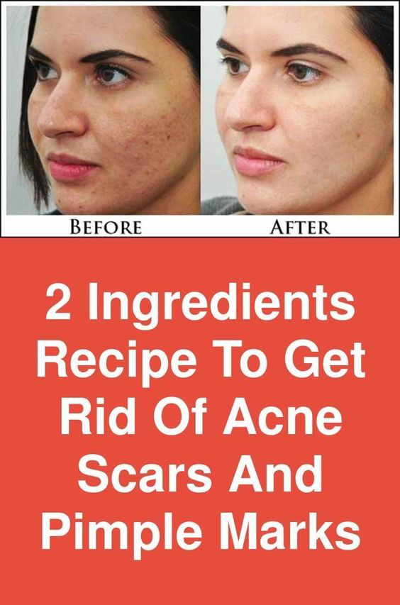 2 Ingredients Recipe To Get Rid Of Acne Scars And …