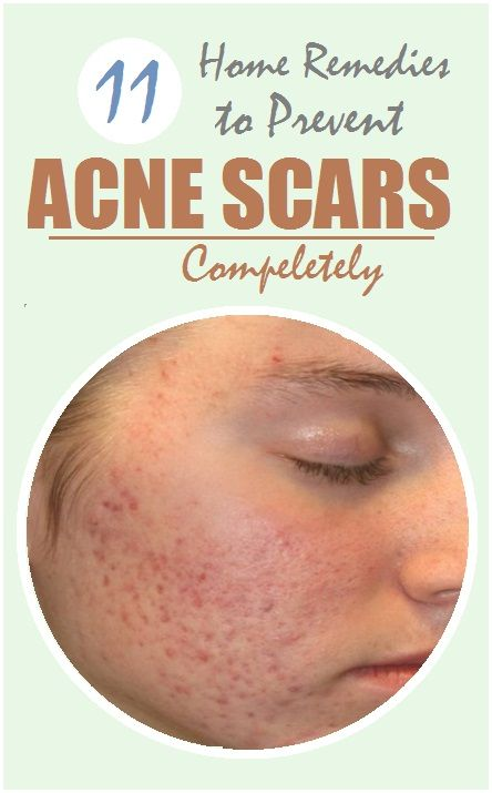 How to get rid of Acne Scars with Home Remedies