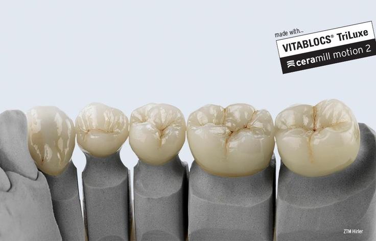 Single crowns out of VITABLOCS® TriLuxe forte feld spar ceramic blocs by DMT Werner Hirler