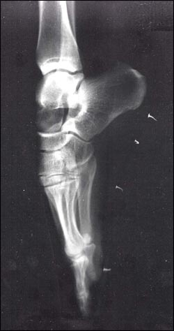 41 best x ray vision images on pinterest x rays bones and helmut chan han goh en pointe ccuart Images
