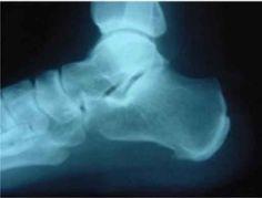 <p>O esporão do calcâneo. Trata-se de uma espícula óssea que se desenvolve no calcâneo (osso do calcanhar), causando muita dor e incomodo. As mulheres com idade entre 40 e 50 anos são as principais vítimas do esporão, principalmente aquelas que praticam algum tipo de desporto. O sobrepeso também contribui para …</p>