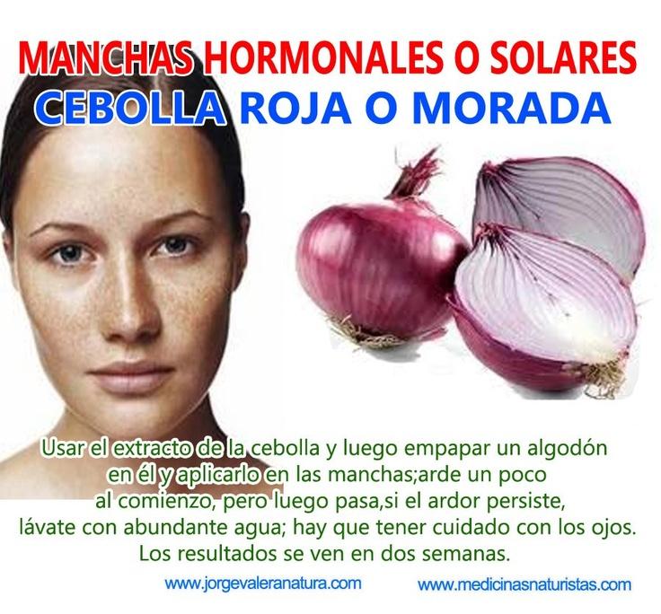 MANCHAS HORMONALES O SOLARES: CEBOLLA