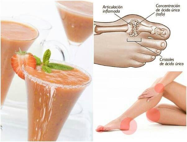 que alimentos debo comer para eliminar el acido urico aloe vera y acido urico alimentacion para enfermos de gota