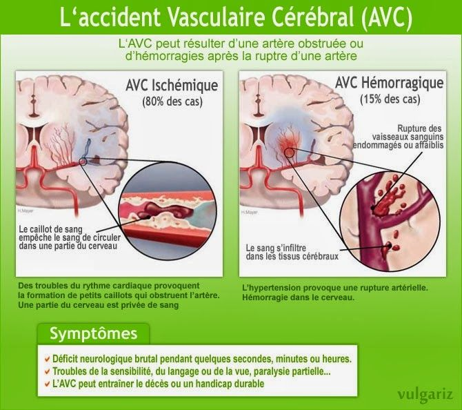 L'accident vasculaire cérébral, infographie AVC Symtômes et origine : http://psychologie-sante.blogspot.com/2014/02/laccident-vasculaire-cerebral.html