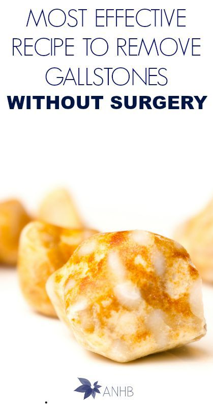 17 Best images about gallbladder stones diet on Pinterest ...