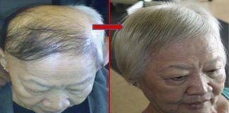 Несколько капель этой смеси и все потерянные волосы начнут расти снова! Удивительно!