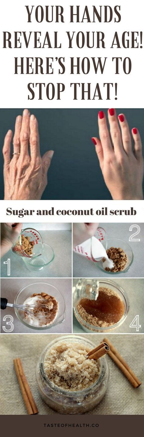 315 best Nail Growth images on Pinterest | Grow long nails, Make ...