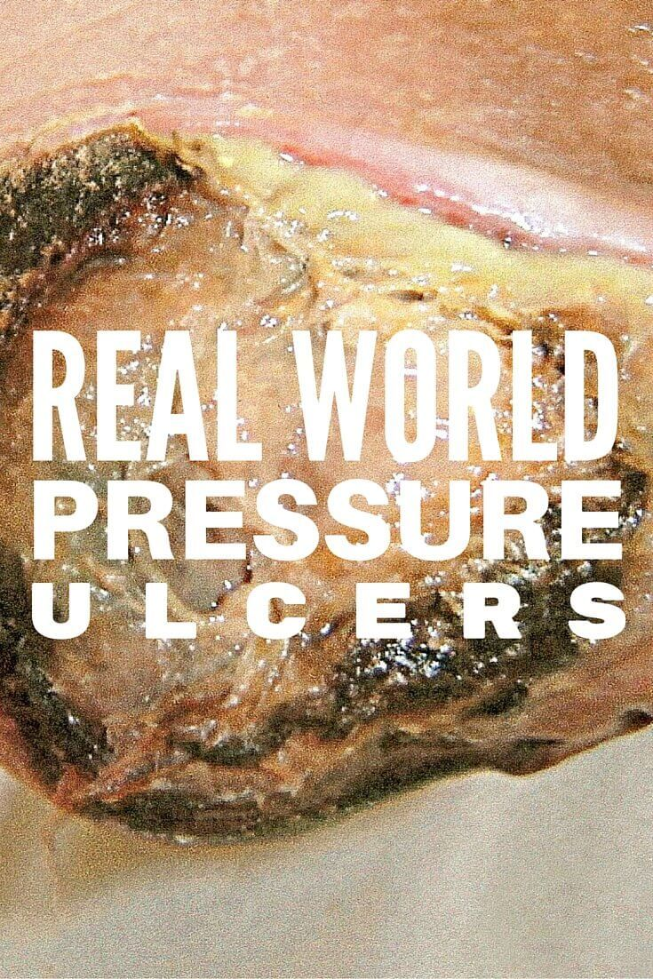 Real World Pressure Injuries Staging Can Be Tricky