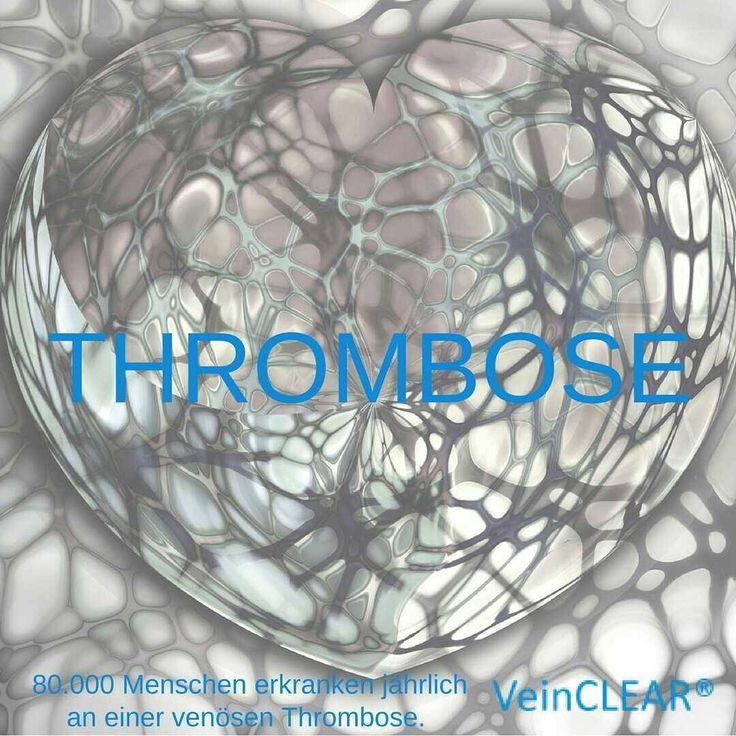 Was ist eine Thrombose?  Eine Thrombose bzw. ein Thrombus ist ein teilweise oder kompletter Gefäßverschluss durch ein entstandenes Blutgerinnsel. Wandert dieses Gerinnsel kann es zu einer gefährlichen Embolie (Verstopfung von Gefäßen) führen. Lebensgefährliche Komplikationen einer anfänglichen Thrombose sind beispielsweise die Lungenembolie oder die Verstopfung von Herzkranzgefäßen (Herzinfarkt) sowie der Schlaganfall.  Diese Blutgerinnsel können beispielsweise entstehen, wenn das venöse…