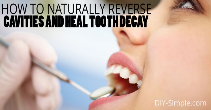 If you could heal your cavities naturally wouldn't you? Take a look and learn how you can!