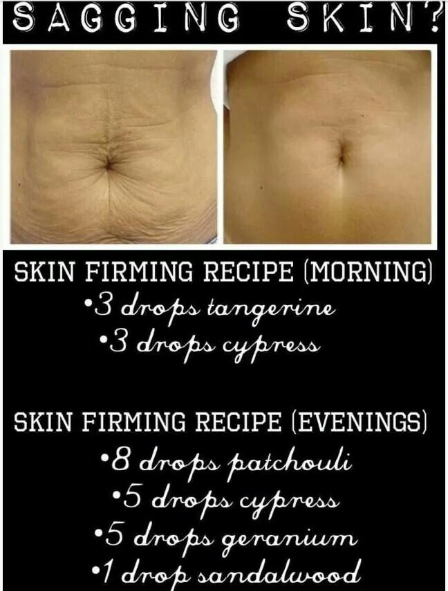 firming skin during weight loss