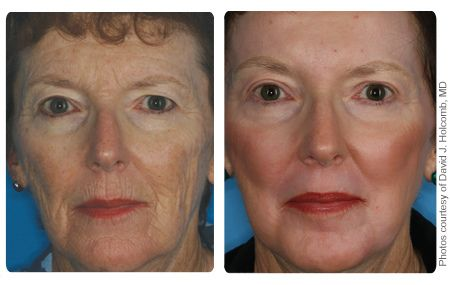 Fractional Co2 Laser Before And After Eyelid Surgery