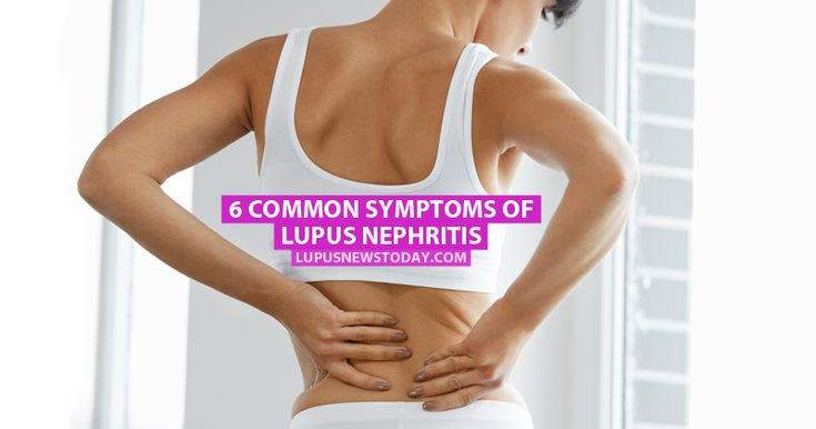 The kidneys are commonly affected in lupus patients and can lead to the development of lupus nephritis.
