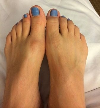 Hallux Limitus is a condition resulting in stiffness of the big toe joint. It is caused by an abnormal alignment of the long bone behind the big toe joint. Left untreated, Hallux Limitus can cause calluses, diabetic foot ulcers & bone spurs www.CompFoot.com