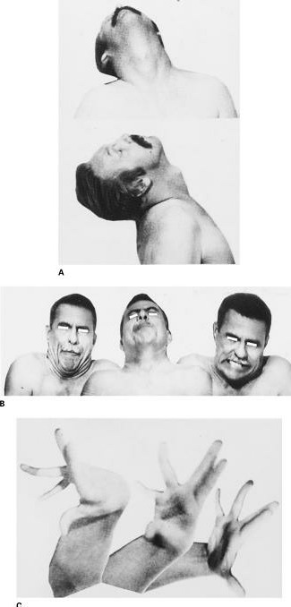 dystonic movement disorders. A) young man with spasmodic retrocollis. B) Meige syndrome of severe blepharospasm and facial-cervical dystonia. C) athetoid-dystonic deformities of hand in pt with tardive dyskinesia