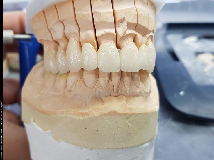 классическая зубные техники все картинки следующего видео