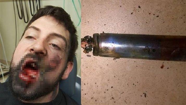 Biliyor muydun ? /// Elektronik sigara yüzünde patladı, 7 dişi döküldü