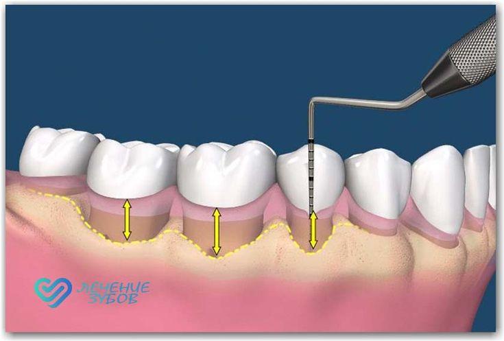Лечение заболеваний десен.Болезнь десен является основной причиной потери зубов и необходимости ее корни. Активное заболевание пародонта проявляется в покраснении и отеке, боли и кровотечениях, вместо розовых десен и в здоровом состоянии.В случае хронического заболевания периодонта обычно нет боли, но есть разрушение механизма захвата, окружающего корни зуба. Отбор десен и десневые карманы могут встречаться даже вблизи