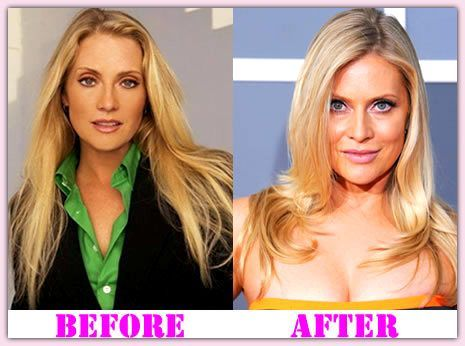 Emily procter plastic surgery before after remarkable, rather