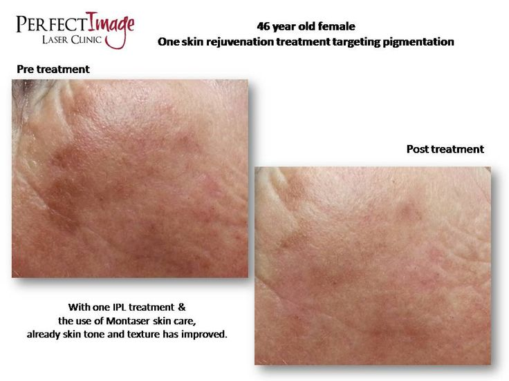 Pre and post IPL skin rejuvenation images.