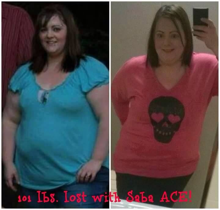 wow!! You go girl!!! Over 100lbs lost with Saba Ace!! It's only a $1 a capsule!! Who wants to be the next success story with Saba? Msg me for more info on how to get yours 606-792-7752 email tamara.brown79@yahoo.com www.sabaforlife.com/JohnsonTamara #saba60 #weightloss #weightlossjourney #diets #gethealthy #behealthy