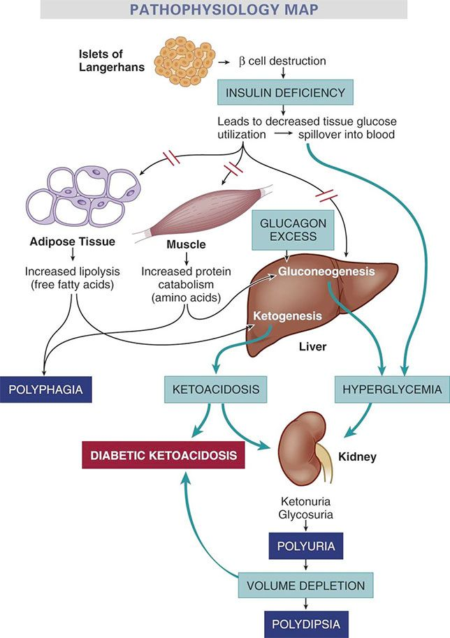 Metabolic events leading to diabetic ketoacidosis.