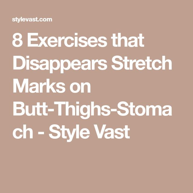 how to get rid of stretch marks in buttocks