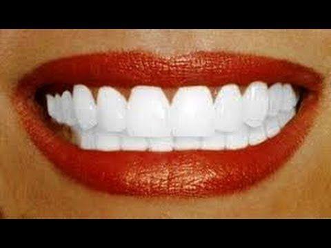 Le secret pour retrouver des dents super blanches ! – Astuces de filles