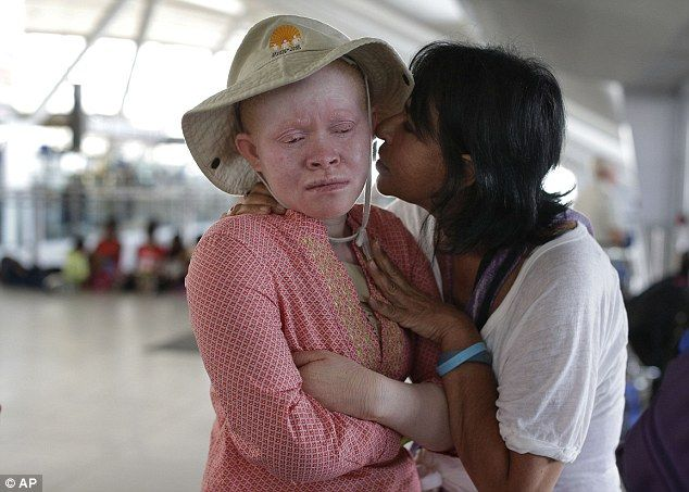 How Tanzania's albino children have limbs hacked off witch doctors | Witch doctor. Children. My heart is breaking