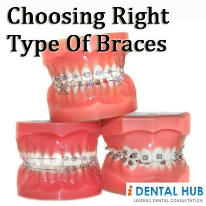 What kind of Orthodontic Braces do I need, What type of Braces are available. There are many kinds of braces. These are normal metal braces, tooth colored brace, ceramic braces, Invisalign, lingual braces. The choice of braces is personal and can vary from person to person. Cost of braces is one of the major deciding factors.