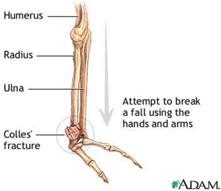 The Dinner Fork Deformity - ISPUB (Colles-- transverse fracture of radius 2.5cm proximal to its AC. Radius shortened, ulnar styloid may be longer)