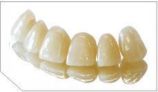 E.max full-ceramic crowns