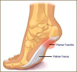 10 Ways to Fix Your Plantar Fasciitis—for Good!