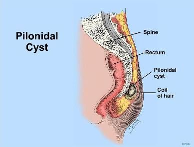 Homeopathic Treatment for Pilonidal Cyst