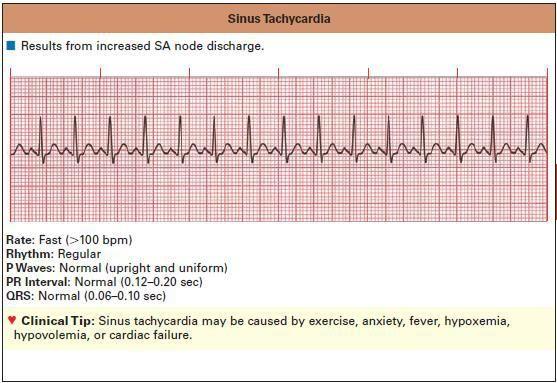 sinus tachycardia - causes: pain, stress, rx, caffeine, nicotine, PE, etc.