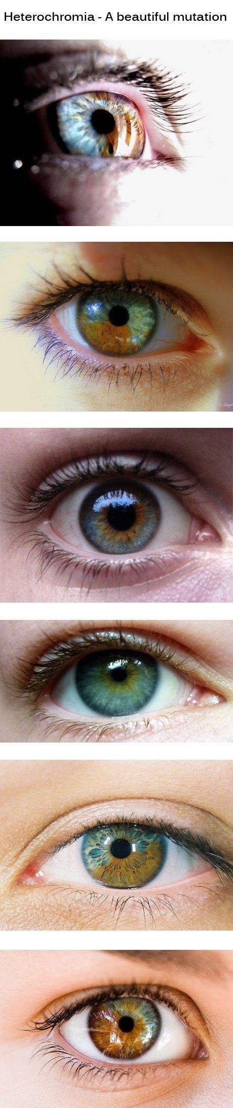 Heterochromia- I have this mutation around the iris of both eyes as well and an amber wedge in my left eye.