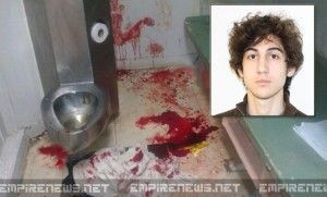 Accused Boston Marathon Bomber Severely Injured In Prison, May Never Walk Or Talk Again  = slipped on a BANANA PEEL? pfft