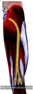 quel traitement pour une sciatique - infiltration lombaire.soulager une hernie discale cervicale 8443577781