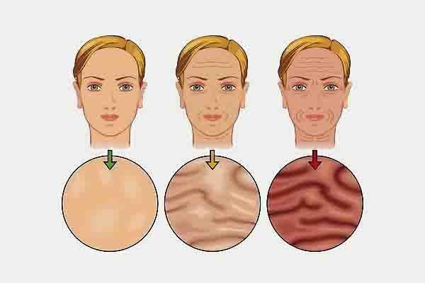 La sorprendente razón por la que tienes arrugas y piel fláccida: Cada vez que nos miramos en el espejo nos damos cuenta de que han salido nuevas arruguitas y que la piel cuelga y se esta volviendo cada vez mas flácida. Eso tiene un nombre: Glicación. La glicación es el nombre de la principal causa …