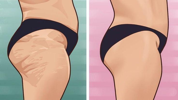 Beinahe jede Frau hat mit unschönen Dellen am Po oder an den Oberschenkeln zu kämpfen. Obwohl du Sport treibst und dich ausgewogen und gesund ernährst, wollen deine Dellen einfach nicht verschwinden? Dann haben wir die Lösung für dich, denn mit dieser selbstgemachten Cellulite-Creme wirst du deine Orangenhaut innerhalb von einer Woche los.     https://www.youtube.   #anleitung #anti cellulite #CELLULITE #cellulite bekämpfen #cellulite loswerden #diy #Schritt für sch