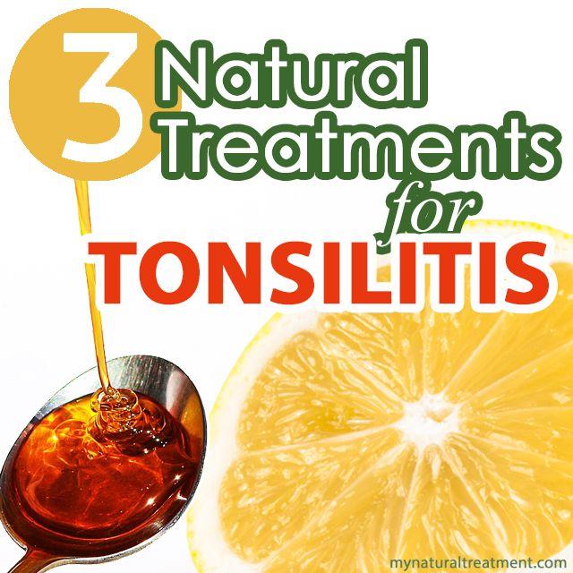 Natural Treatment for Tonsillitis #tonsilitis #tonsilitisremedy