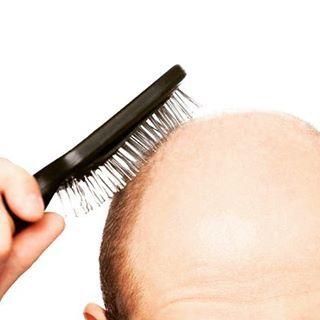 ¡Damos solución a la #alopecia! Recuerda⤵ www.centrosbeltran.com #alopeciaareata #alopecianbeauty #calvicie #cabello #pelo #protesiscapilar…