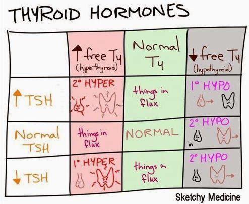 hypothyroidism thyroid hormone Hypothyroidism is an underactive thyroid gland hypothyroidism means that the  thyroid gland can't make enough thyroid hormone to keep the body running.