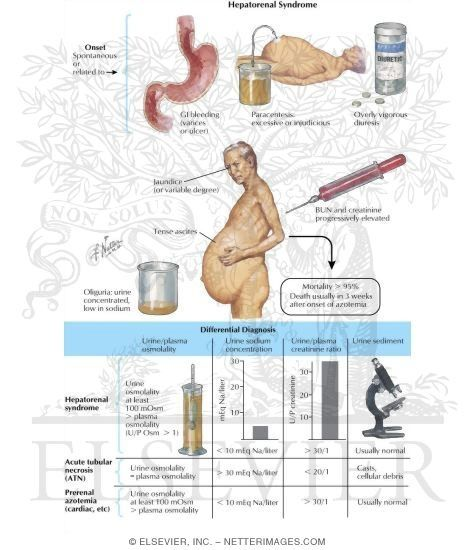 top 25+ best hepatorenal syndrome ideas on pinterest   esophageal, Skeleton
